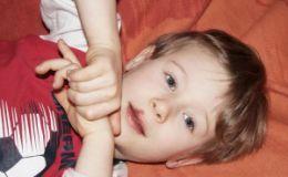 Герпес у детей: как помочь малышу?