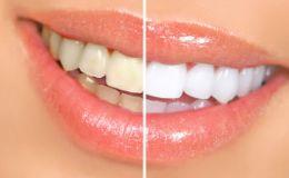 О чем расскажет цвет зубной эмали?