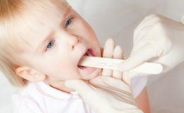 Что нужно знать о тонзиллите?