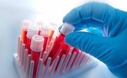 Как поднять гемоглобин без лекарств во время беременности
