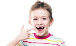 6 странностей, которые происходят с детскими зубами