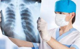 10 міфів про туберкульоз, в які пора перестати вірити — Уляна Супрун