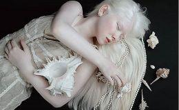 Красота вопреки: в семье родились девочки-альбиносы